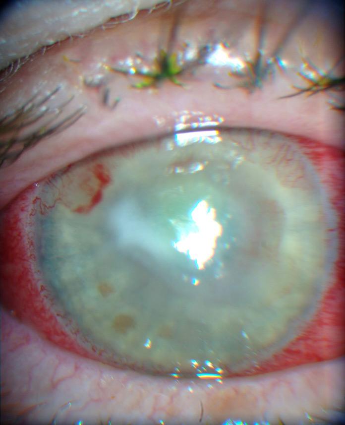 Acanthamoeba keratitis handbook of ocular disease management for Mucus fishing syndrome