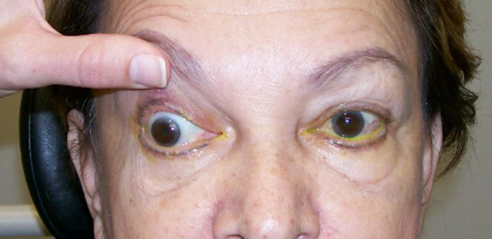 Cranial nerve iii palsy handbook of ocular disease for Mucus fishing syndrome