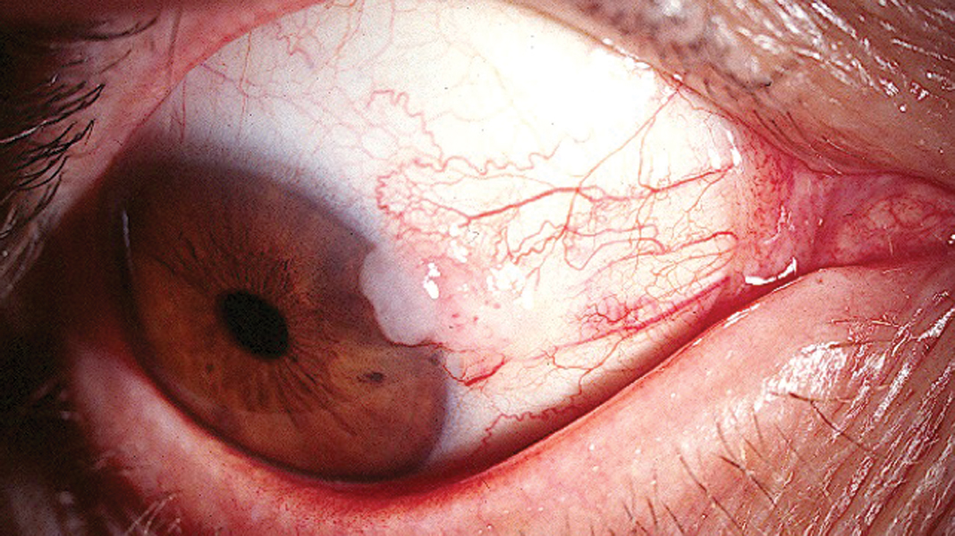 Conjunctival intraepithelial neoplasia handbook of for Mucus fishing syndrome