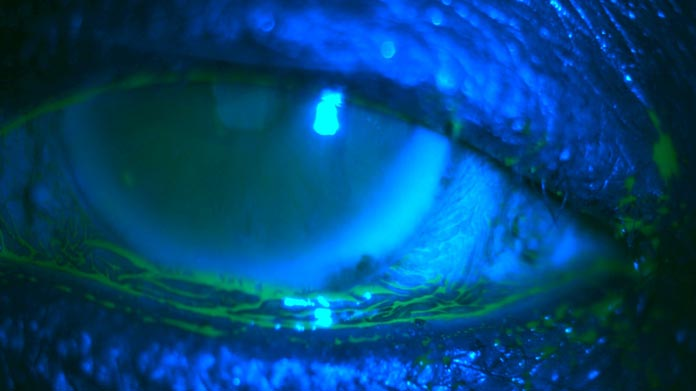 Conjunctivochalasis handbook of ocular disease management for Mucus fishing syndrome