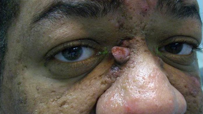 Verruca and papilloma handbook of ocular disease management for Mucus fishing syndrome