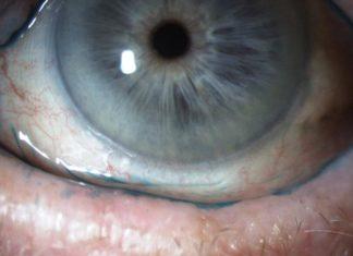 Image atlas handbook of ocular disease management for Mucus fishing syndrome