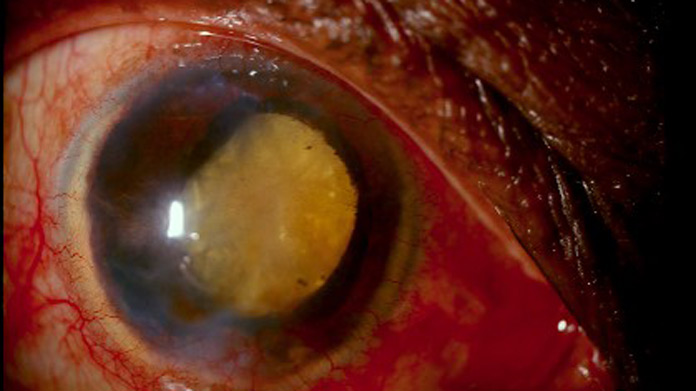 Phacolytic glaucoma handbook of ocular disease management for Mucus fishing syndrome