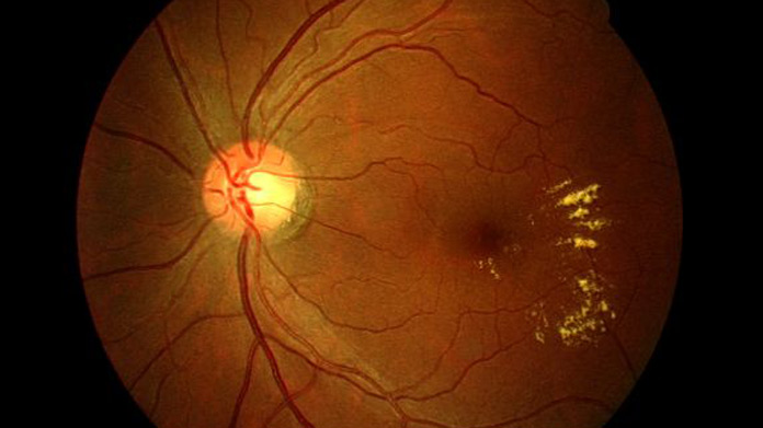 Idiopathic macular telangiectasia handbook of ocular for Mucus fishing syndrome