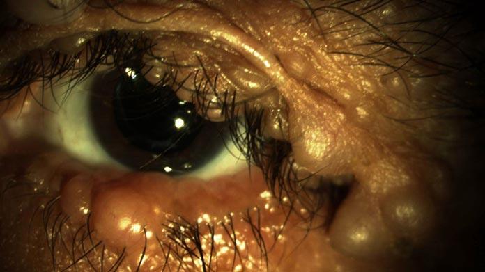 Neurofibromatosis handbook of ocular disease management for Mucus fishing syndrome