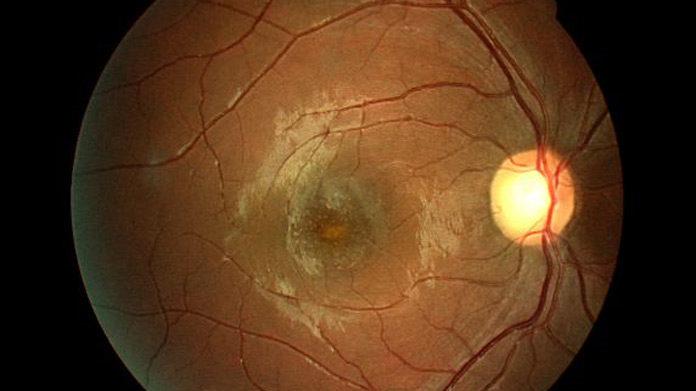 Solar retinopathy handbook of ocular disease management for Mucus fishing syndrome