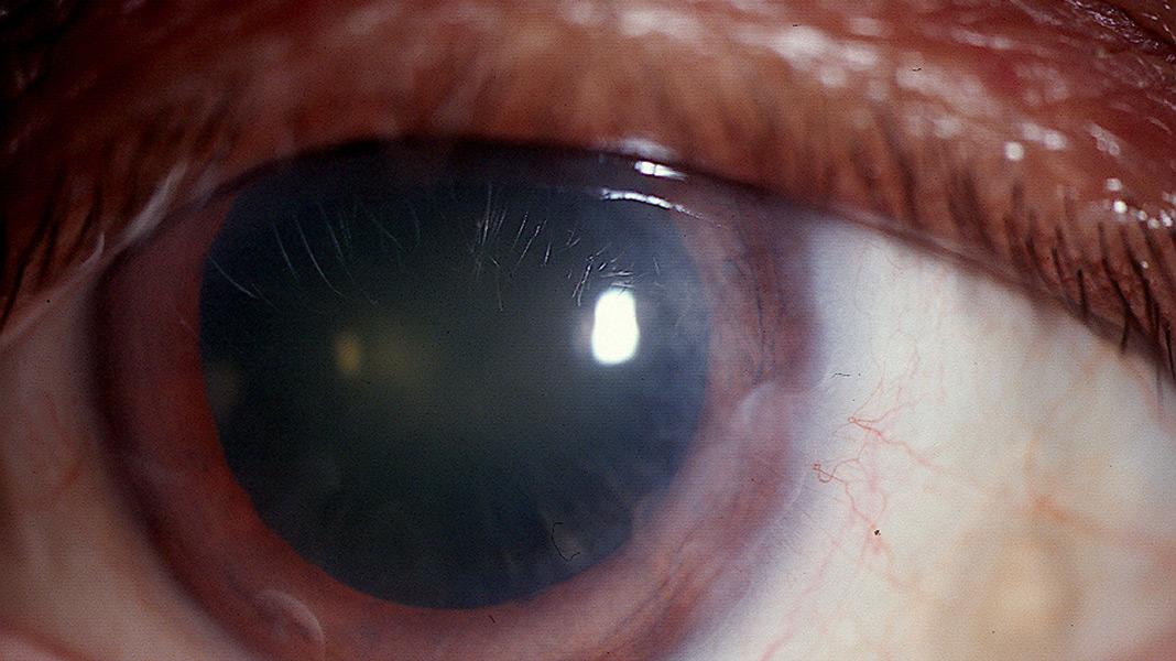 Terrien s marginal degeneration handbook of ocular for Mucus fishing syndrome
