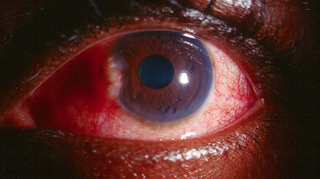 Uveitic glaucoma handbook of ocular disease management for Mucus fishing syndrome